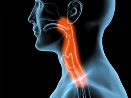 El trastorno de la deglución se llama disfagia