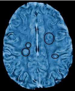 Resonancia magnética en Esclerosis Múltiple